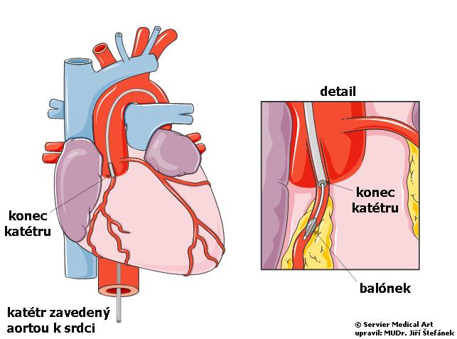 Koronarografie s angioplastikou