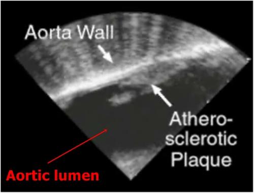 Atherosclerosis - sonography