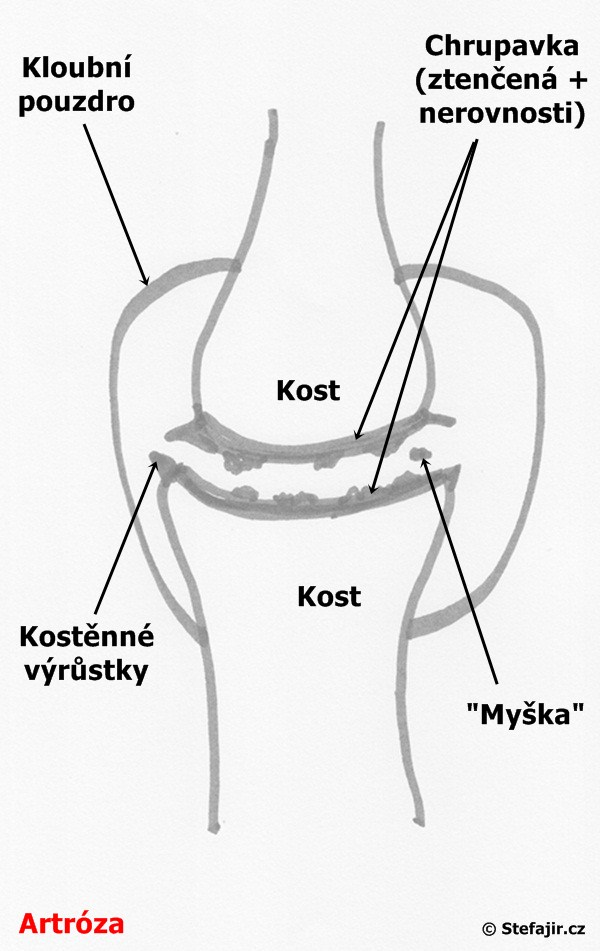 Artroza - schema