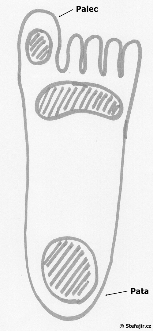Diabeticka noha - lokalizace defektu