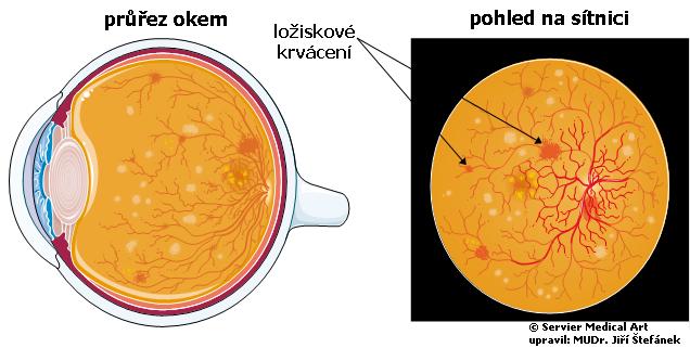 Diabeticka retinopatie - schema