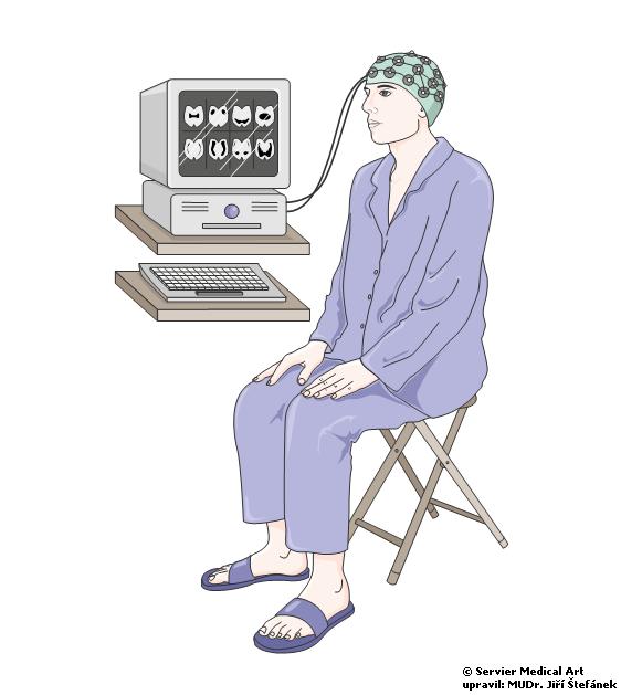 EEG vysetreni