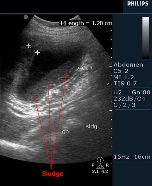 Gallbladder sludge - sonography