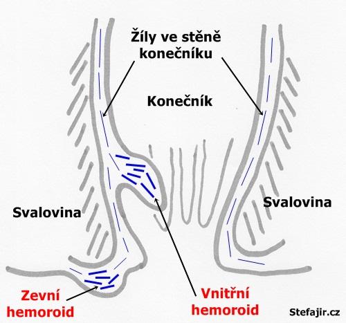 Hemoroidy - schema