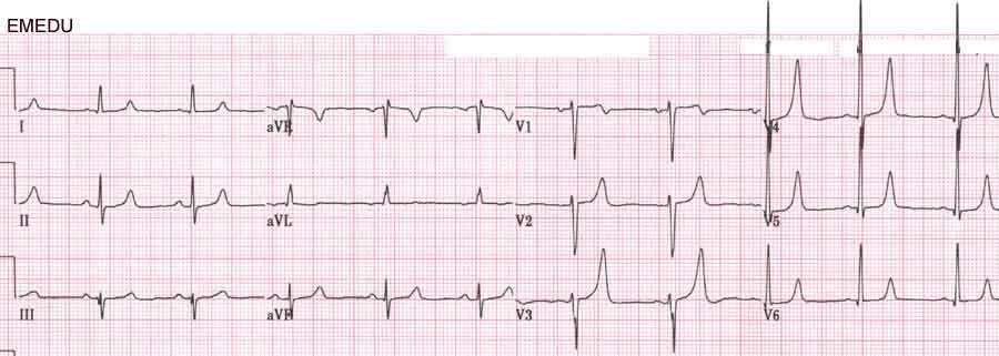 Hyperkalemie - EKG