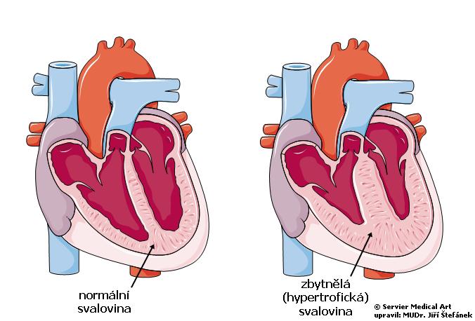 Hypertrofie myokardu