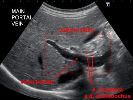 Ultrazvuk bricha