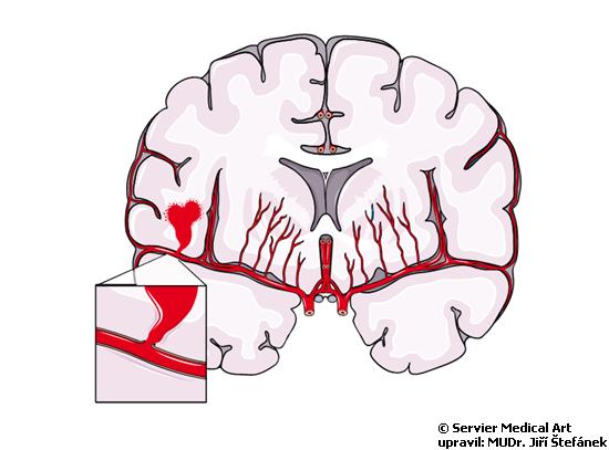 Krvaceni do mozku