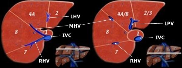 Liver Segments - Sonography | Medicína, nemoci, studium na 1. LF UK
