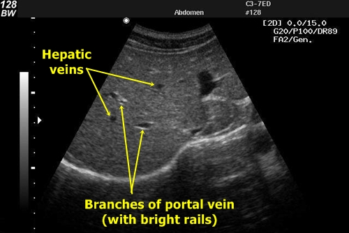 Liver vessels - sonography