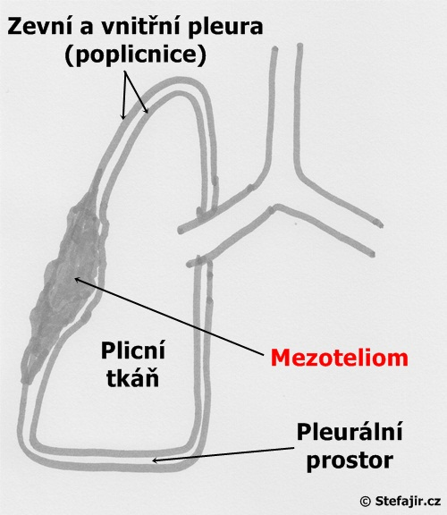 Mezoteliom - schema