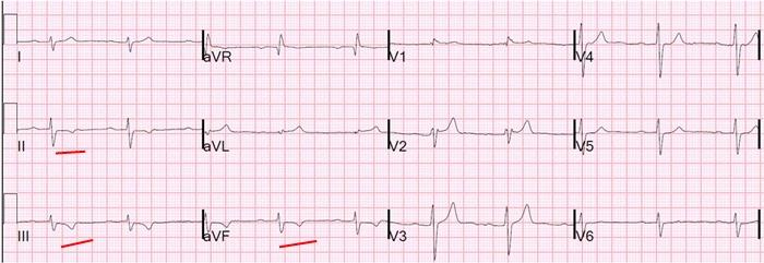 NSTEMI infarkt spodni steny myokardu na EKG