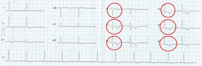 NSTEMI infarkt predni steny myokardu na EKG