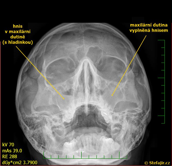 Sinusitida
