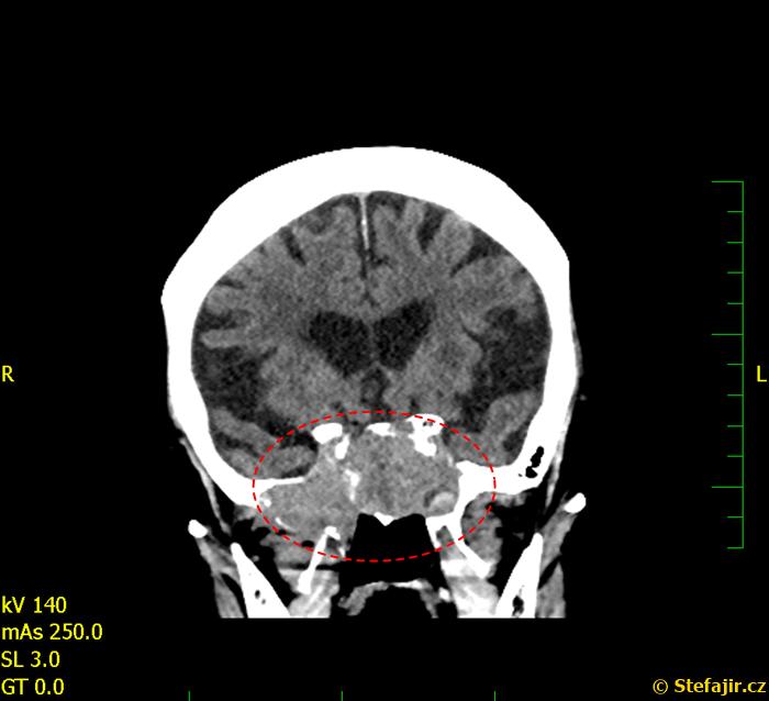 Tumor spodiny mozku