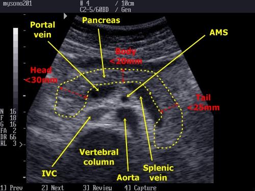 Pancreas Sonography Medicna Nemoci Studium Na 1 Lf Uk