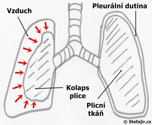 Pneumotorax - schema