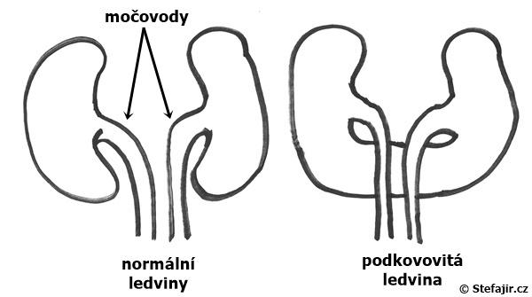Podkovovita ledvina - schema