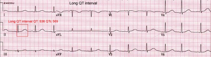 Prodlouzeny QT interval na EKG