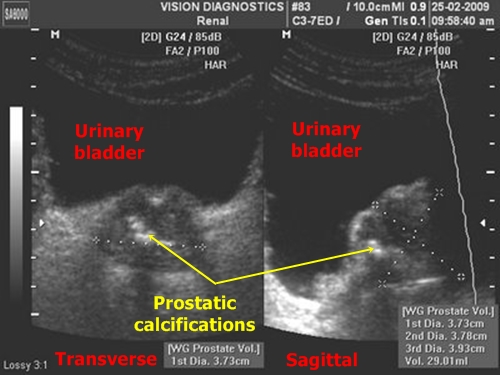 Prostate calcifications - sonography