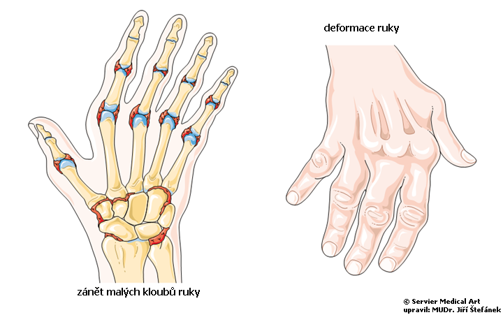 Revmatoidni artritida - schema
