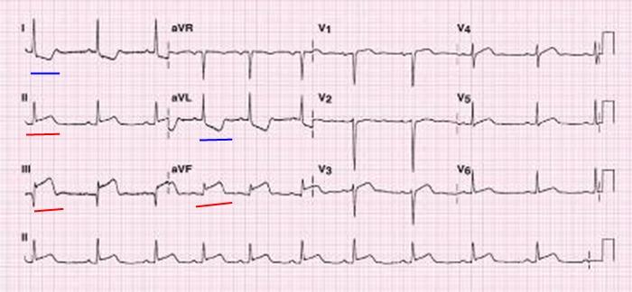 STEMI infarkt spodni steny myokardu na EKG