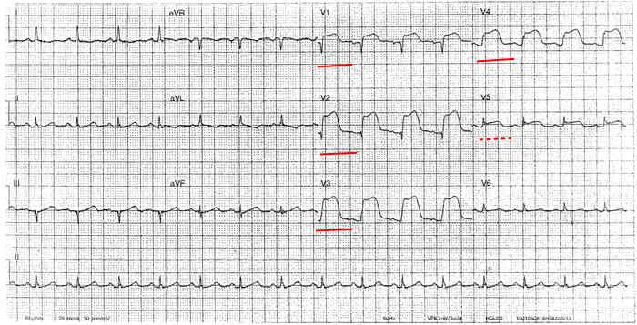 STEMI infarkt predni steny myokardu na EKG