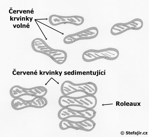 Princip sedimentace