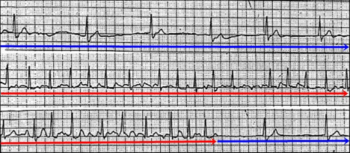 Sick sinus syndrom na EKG