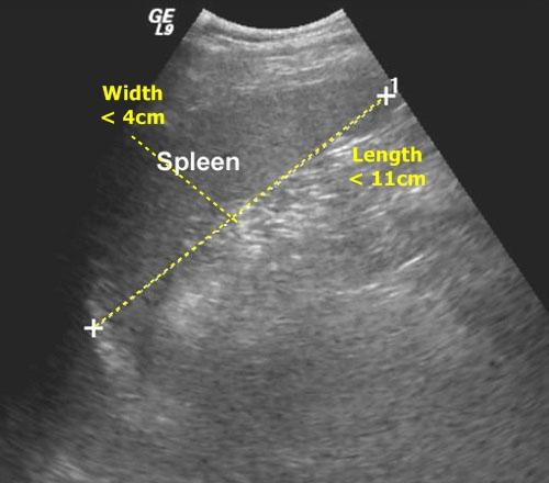 Spleen - sonography