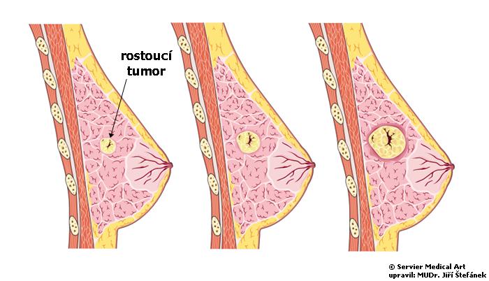 Rakovina prsu - schema