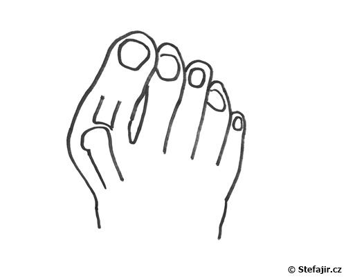 Vboceny palec - schema