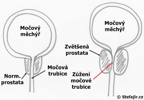 Zvetsena prostata - schema